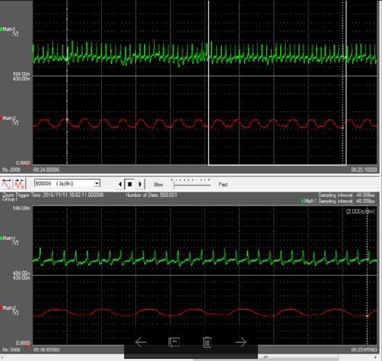 Plaatje 3 CF ademhaling